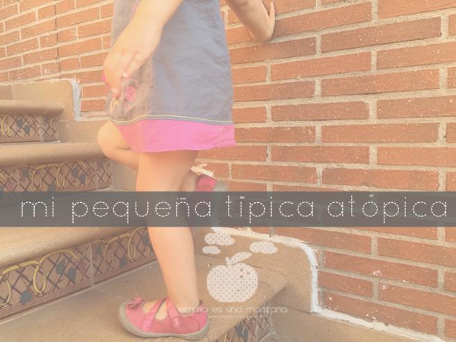 Pequeña tIpica atópica - nuestro descubrimiento para mejorar la piel atópica